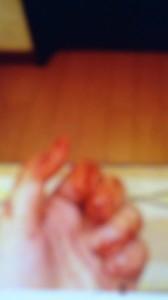 犯行直後と思しき血染めの左手の写真が、ネットに公開されていた